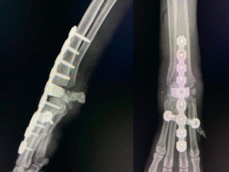 Artrodesis Carpus C0026