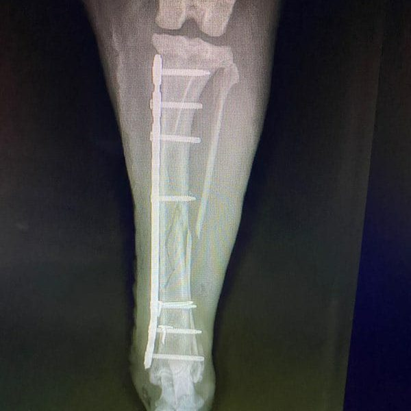 Mid-Shaft Tibia C0035